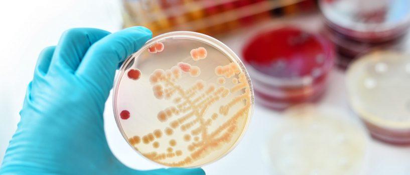 Paciorkowce — które choroby wywołują, jak dochodzi do zakażenia i dla kogo są niebezpieczne?