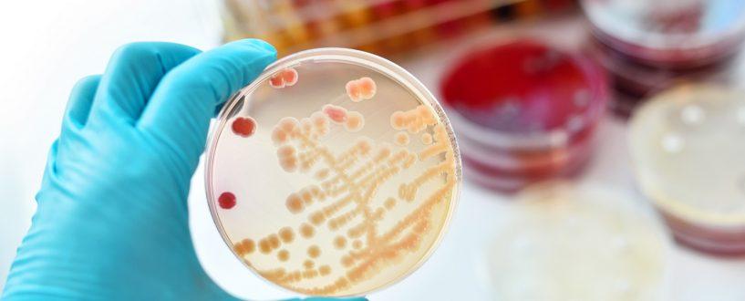 Paciorkowce —które choroby wywołują, jak dochodzi dozakażenia idla kogo są niebezpieczne?